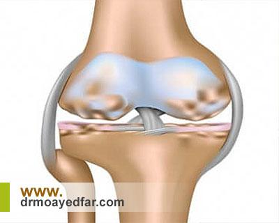 آرتريت یکی از اصلی ترین علل درد زانو