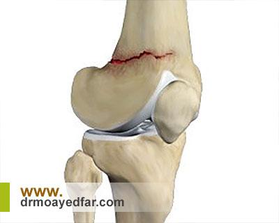 روشهای درمانی شکستگی کاسهی زانو