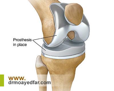آیا جراحی تعویض مفصل زانو عوارض دارد؟