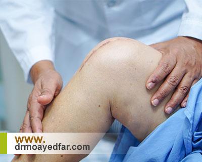 قبل از جراحی زانو چه اقداماتی لازم است؟