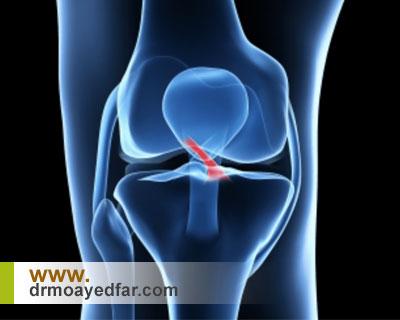 درمان پارگی رباط زانو با جراحی