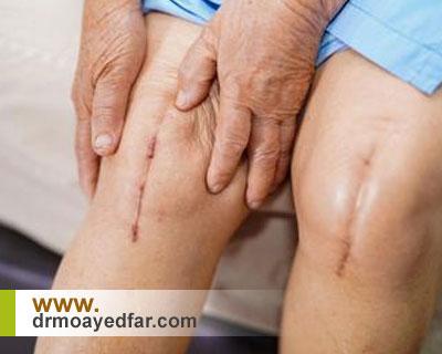 عدم بهبود درد پس از جراحی تعویض مفصل زانو
