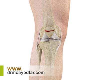 شکستگی کشکک زانو چه علائمی دارد؟