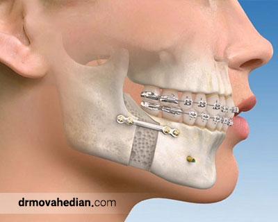 صدای مفصل فک چگونه درمان می شود ؟