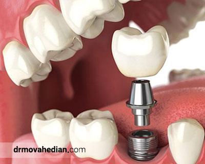 جایگذاری ایمپلنت دندانی