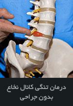 درمان تنگی کانال نخاع بدون جراحی