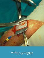 نمونه برداری ( بیوپسی ) بیضه یا میکروتسه