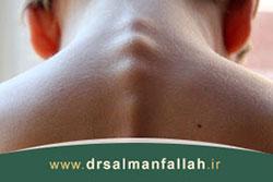 درمان ورزشی قوز پشت یا کیفوز
