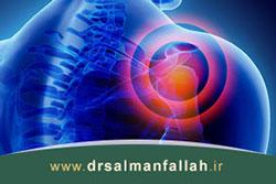 سندرم گیرافتادگی شانه چیست و چگونه درمان میشود؟