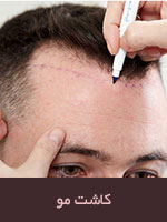 کاشت مو به درد چه کسی میخورد؟