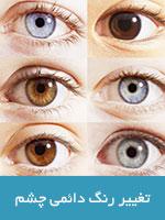 تغيير رنگ دائمی چشم