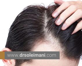 تفاوت ترمیم مو و کاشت مو و کاربرد هر کدام