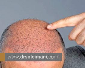 پیوند مو چیست؟