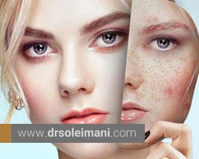 لک صورت چیست و چگونه درمان میشود؟