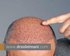 کاشت مو چیست و چگونه انجام میشود؟