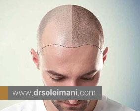 کاشت مو به روش FIT چه معایب و مزایایی دارد و چه مدت ماندگار است؟