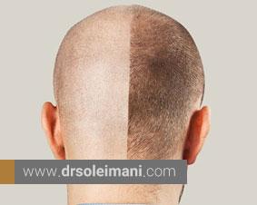 انواع روشهای کاشت مو کدام است؟
