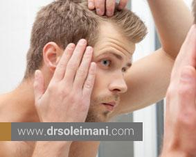 بعد از کاشت مو چه کنیم؟