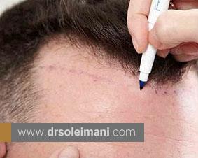 آیا کاشت مو به روش sut عوارض دارد؟