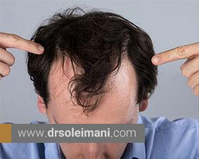 برخی از روشهای درمانی درمانی ریزش مو