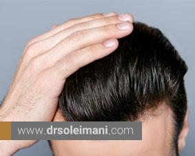 توصیه های بعد از کاشت موی طبیعی که باید انجام داد