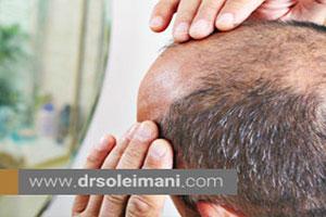 روشهای درمانی آلوپسی یا از دست دادن موها