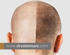 آیا برای کاشت مو جایگزین وجود دارد؟