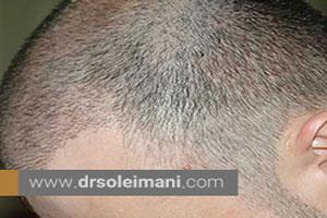 چه افرادی برای  کاشت مو به روش FIT مناسب هستند؟