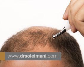 پس از کاشت مو از چه روشهایی برای حفظ فولیکولها استفاده میشود؟