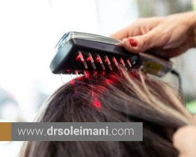 فواید لیزر تراپی پس از کاشت مو و درمان ریزش مو