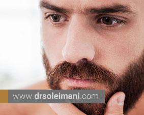 کاشت ریش و سبیل به روش FUT