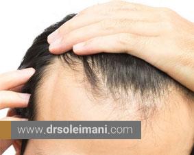 چه کسانی نمیتوانند عمل کاشت مو را انجام دهند؟