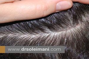 اهمیت بانک مو  در عمل کاشت مو چیست؟
