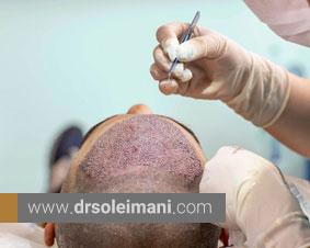 علت خونریزی بعد از کاشت مو و روش برطرف کردن آن