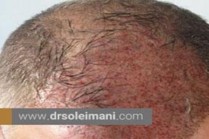 کاشت مو برای افرادی که دچار سوانح آتشسوزی شدهاند