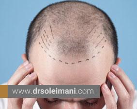 اصلاح طراحی خط رویش مو با کاشت