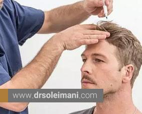 کاشت مو در کلینیک های تخصصی چگونه است؟
