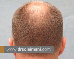 کاشت مو چقدر طول می کشد؟