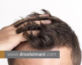 عوامل مؤثر در تعیین هزینه کاشت مو