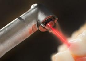 درمان زگیل تناسلی با لیزر