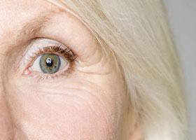 درمان چروکهای زیر چشم