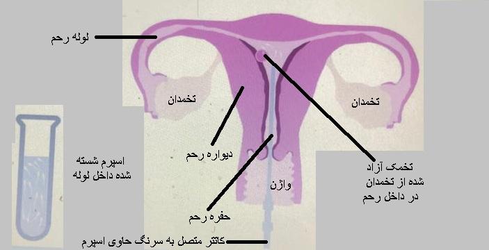 IUI    ( تلقيح اسپرم شسته شده داخل رحم )