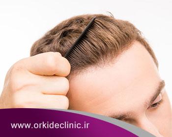 پیوند مو طبیعی به چه مراقبتهایی نیاز دارد؟