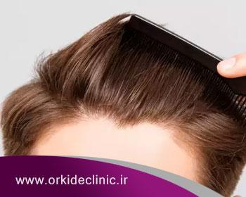 ریزش مو با چه روشهای قابل درمان است؟