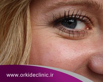 رفع چروک اطراف چشم یا خطوط پنجه کلاغی