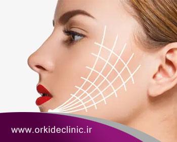 لیفت صورت با نخ روشی مؤثر در جوانسازی پوست