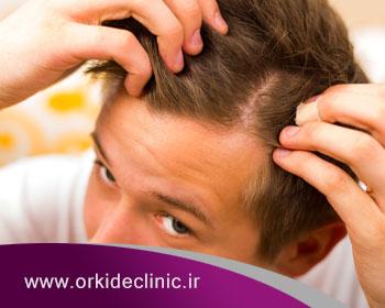 سلولهای بنیادی چه کاربردی در کاشت مو دارند؟