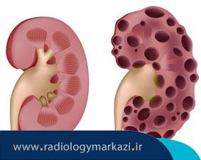 درمان کیست کلیه به وسیله پزشک رادیولوژیست