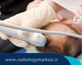 سونوگرافی داپلر بر روی کودک و یا نوزاد