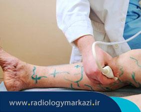 درمان واریس به روش های مدرن
